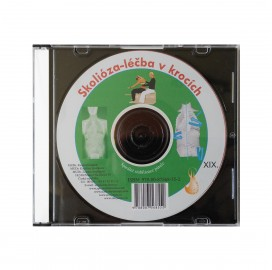 CD skolióza - léčba v krocích (originál Mudr. Smíšek)