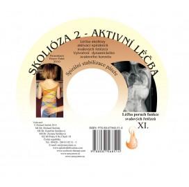 CD skolióza 2 - aktivní léčba (originál Mudr. Smíšek)